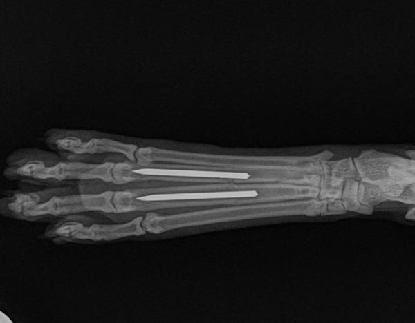 Fraktur zweier Mittelfußknochen postoperativ