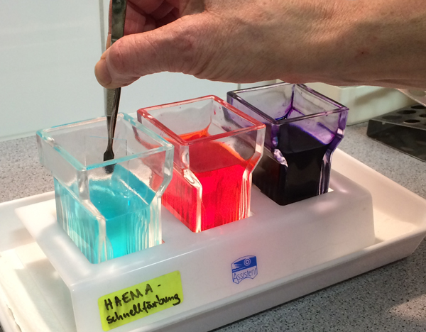 Färbung eines Blutausstrichs