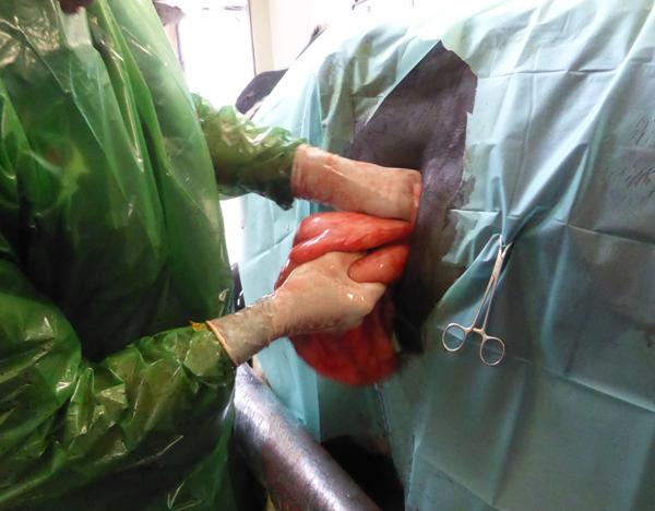 Labmagen-Operation von rechts: Hervorziehen des großen Netzes, an dem der Labmagen fixiert ist