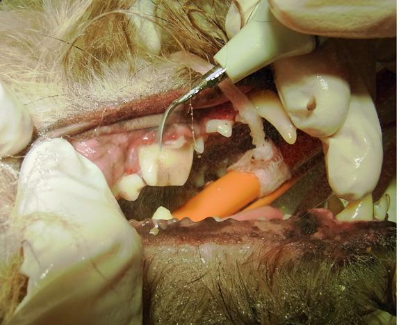 Zahnsteinentfernung mit Ultraschall